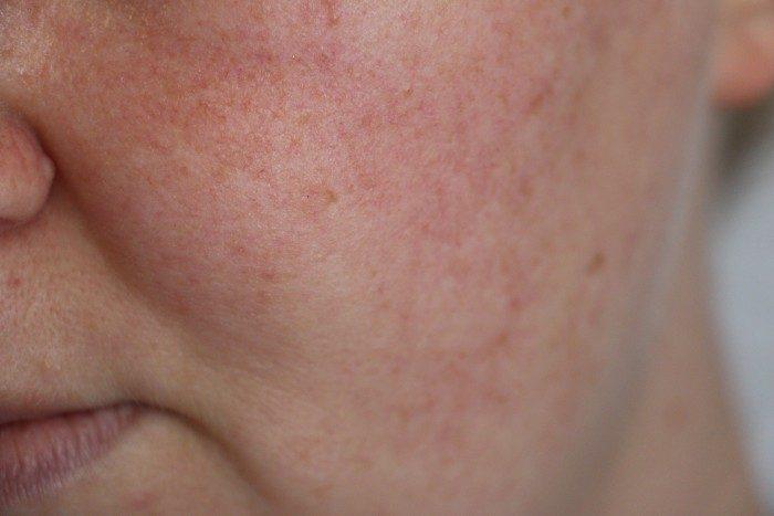 Gladskin rosacea gel, rosacea behandeling